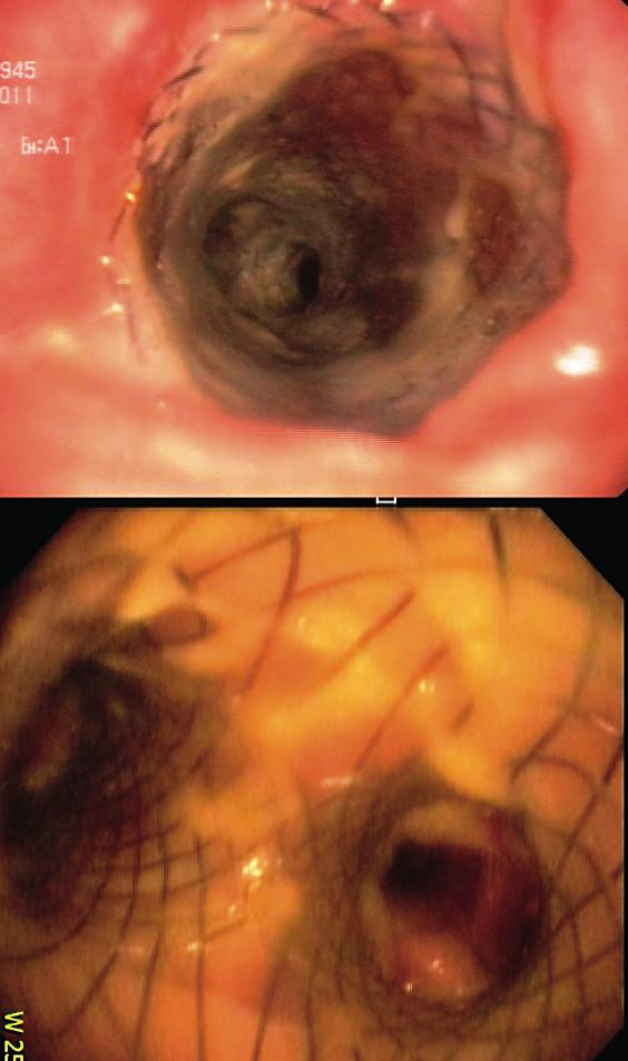 """Implantovaný Polyflex """"Y"""" stent do trachey a obou hlavních bronchů"""