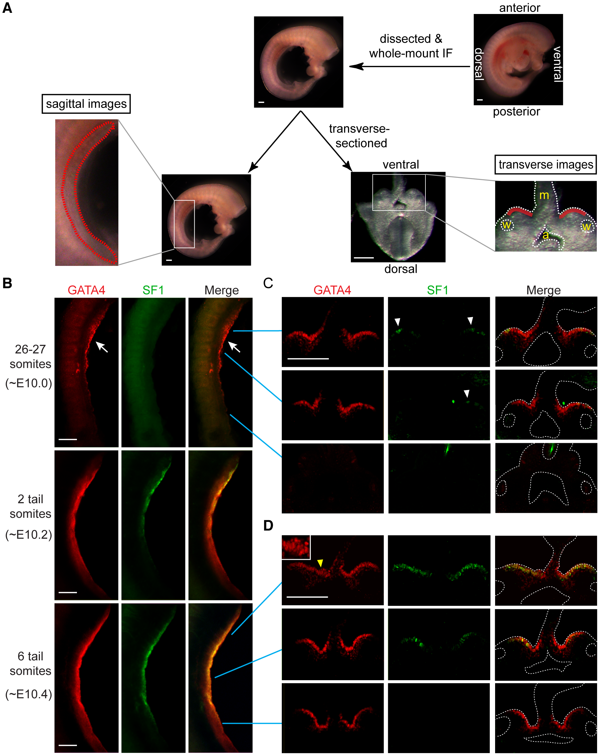 GATA4 expression precedes coelomic epithelial thickening and progresses from anterior to posterior.