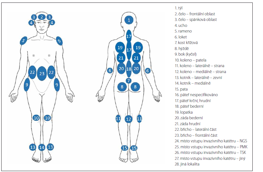 Predilekční lokality vzniku dekubitů.<br>
