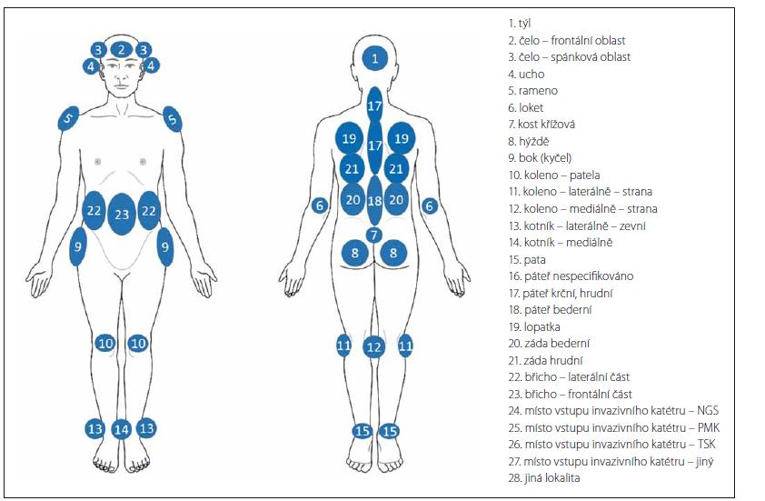 Predilekční lokality vzniku dekubitů.<br> Fig. 5. Predilection sites of Pressure ulcers.
