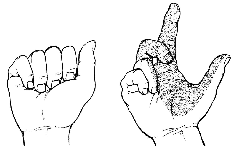Léze kmene n. medianus z oblasti lokte (Schwurhand) Při pokusu o pěst pacient nesvede flexi I.–III.prstu (ruka přísahá). Porucha čití pro celou kožní oblast n. medianus