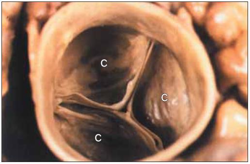 Plně uzavřená normální aortální chlopeň.