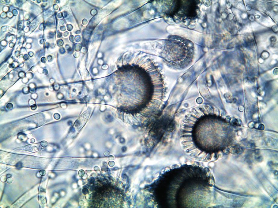 Aspergillus fumigatus v optickém mikroskopu (foto autorka) Figure 3. Aspergillus fumigatus under an optical microscope (photo by the author)