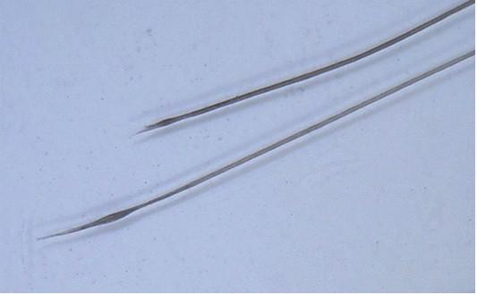 Zašpičatělé proximální konce dystroficko-anagenních vlasů (zvětšení dermatoskopem 20krát)