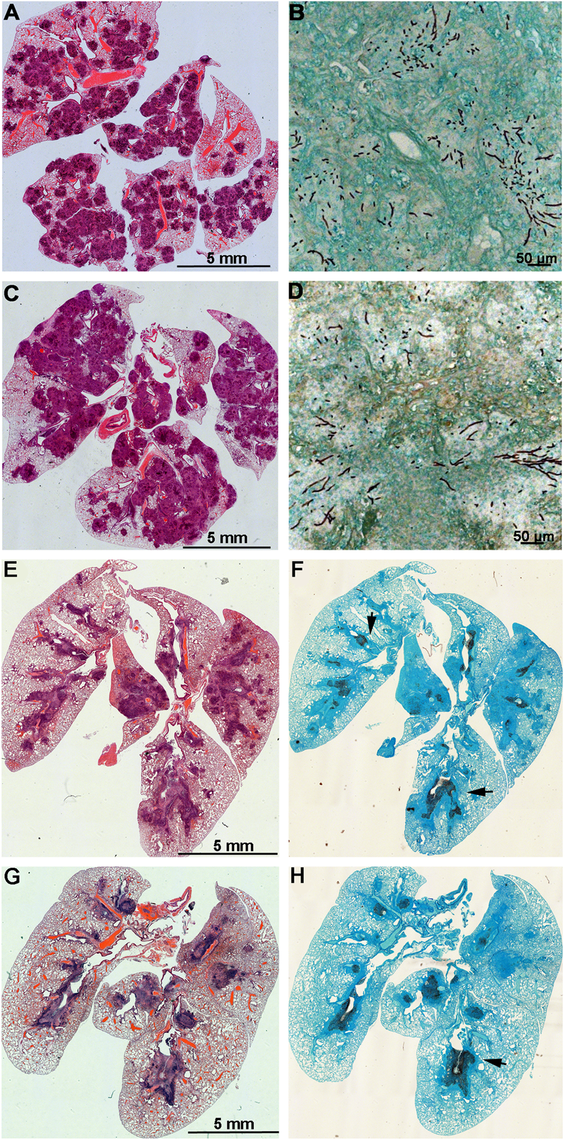 Lungs of mice with chronic granulomatous disease (CGD) or hydrocortisone-treated BALB/c mice inoculated with <i>Aspergillus fumigatus</i> isogenic strains, AFB62 and AFB62F9.