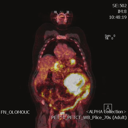 PET/CT objemného lymfomu dutiny břišní Fig. 1: PET/CT scan of extensive lymphoma in the abdominal cavity