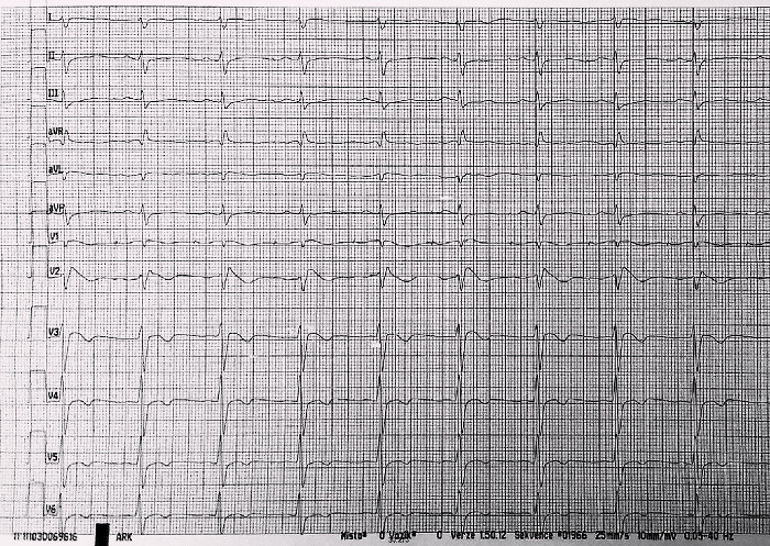 EKG po první resuscitaci pacientky, opět známky Brugada syndromu.