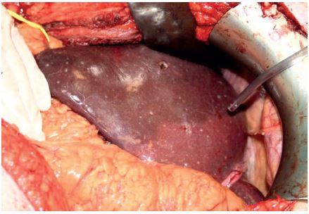 Peroperační foto – jaterní parenchym s mnohočetnými drobnými ložisky, jedno excidováno na kryohistologické vyšetření Fig. 3: Intraoperative image – liver parenchyma with multiple small nodules; one excised for the frozen section procedure