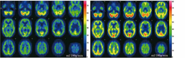 Fig. 1. SPECT images. Single photon emission computed tomography (SPECT) by the <sup>99m</sup>Tc-ECD Patlak Plot method.