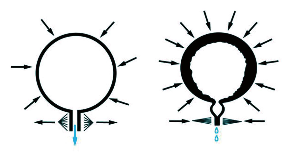 Fyziologický mikční akt a detruzorosfinkterická dyssynergie (DSD). Fig. 4. Physiological miction act and detrusor sphincter dyssynergia (DSD).