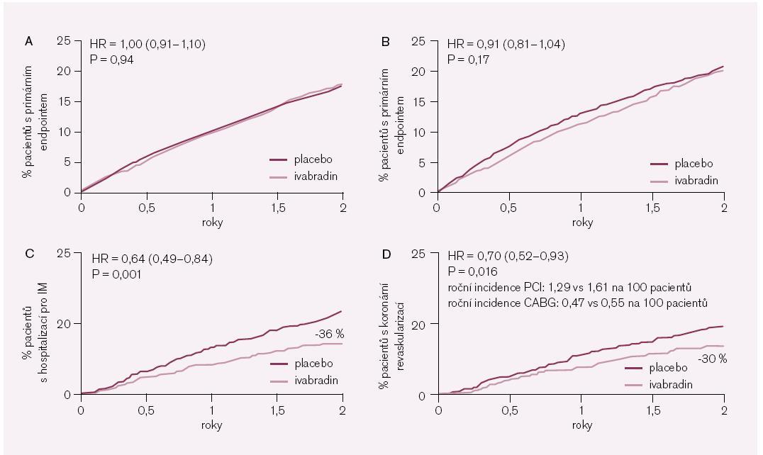 Obr. 3. Výsledky studie BEAUTIFUL. Upraveno podle [11]. Panel A – výskyt primárního složeného  klinického ukazatele (kardiovaskulární mortalita + hospitalizace pro srdeční selhání + hospitalizace pro infarkt myokardu) v celé populaci; Panel B – výskyt primárního složeného klinického ukazatele u nemocných se vstupní srdeční frekvencí ≥ 70 min<sup>-1</sup>; Panel C – hospitalizace pro infarkt myokardu u nemocných se vstupní srdeční frekvencí ≥ 70 min<sup>-1</sup>; Panel D – koronární revaskularizace u nemocných se vstupní srdeční frekvencí ≥ 70 min<sup>-1</sup>.