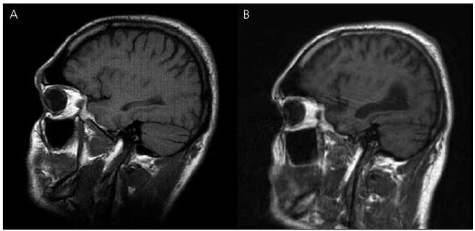 Magnetická rezonance mozku pacienta IV-7. Sagitální řezy v T1 vážených obrazech – vývoj atrofie: (A) rok 2003, (B) rok 2010.