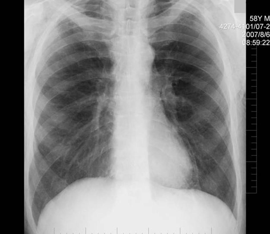 RTG plic po týdnu Fig. 8. Chest X-ray after a week