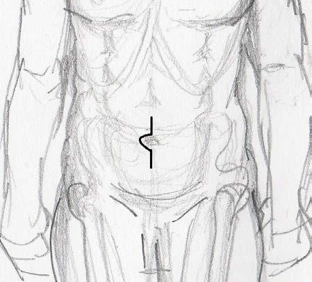 Minilaparotomie – schema Fig. 2. Mini-laparotomy – pattern