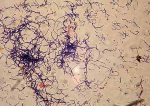 Kmen 08A Lactobacillus gasseri.