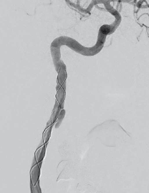 Digitální subtrakční angiografie. Pravá a. carotis interna po endovaskulární léčbě. Fig. 4. Digital subtraction angiography. Right internal carotid artery after endovascular treatment.