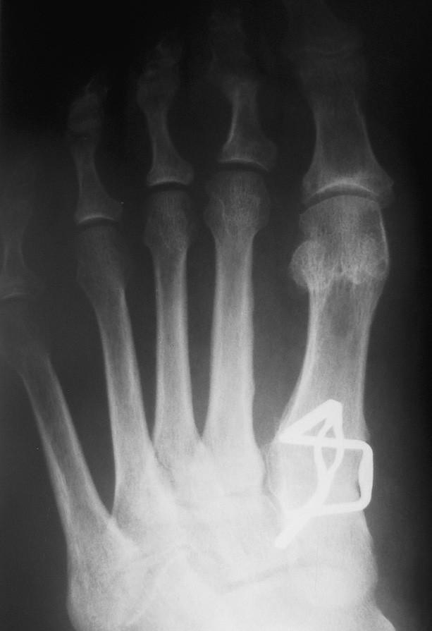 Obr. 7 b – stav po operaci sec. Lapidus, varozita I. MTT je vyrovnána, artrodéza je fixována 2 paměťovými skobkami.