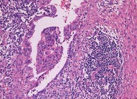 Dobře diferencovaný teratom se v postpubertálním období chová maligně. Totožný nádor před pubertou by se choval benigně. HE 200x.