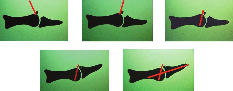 Ishiguro metóda Kirschnerov drôt sa zavedie do hlavičky stredného článku pri flektovanom DIP kĺbe v 45˚ uhle. Následne sa transfixuje DIP kĺb v miernej hyperextenzii ďalším Kirschnerovým drôtom. Materiál z Ústavu chirurgie ruky a plastické chirurgie chirurgie, Vysoké nad Jizerou, ČR, s povolením primára. Fig. 3 Ishiguro technique Holding DIP joint flected, a K-wire is drilled into the articular head of the middle phalanx and makes 45˚ angle with this phalanx. Subseguently, the DIP joint is transfixed in slight hyperextension with another K-wire. Material from the Institute of Hand and Plastic Surgery, Vysoké nad Jizerou, CZ, with permission of the head of the institute.