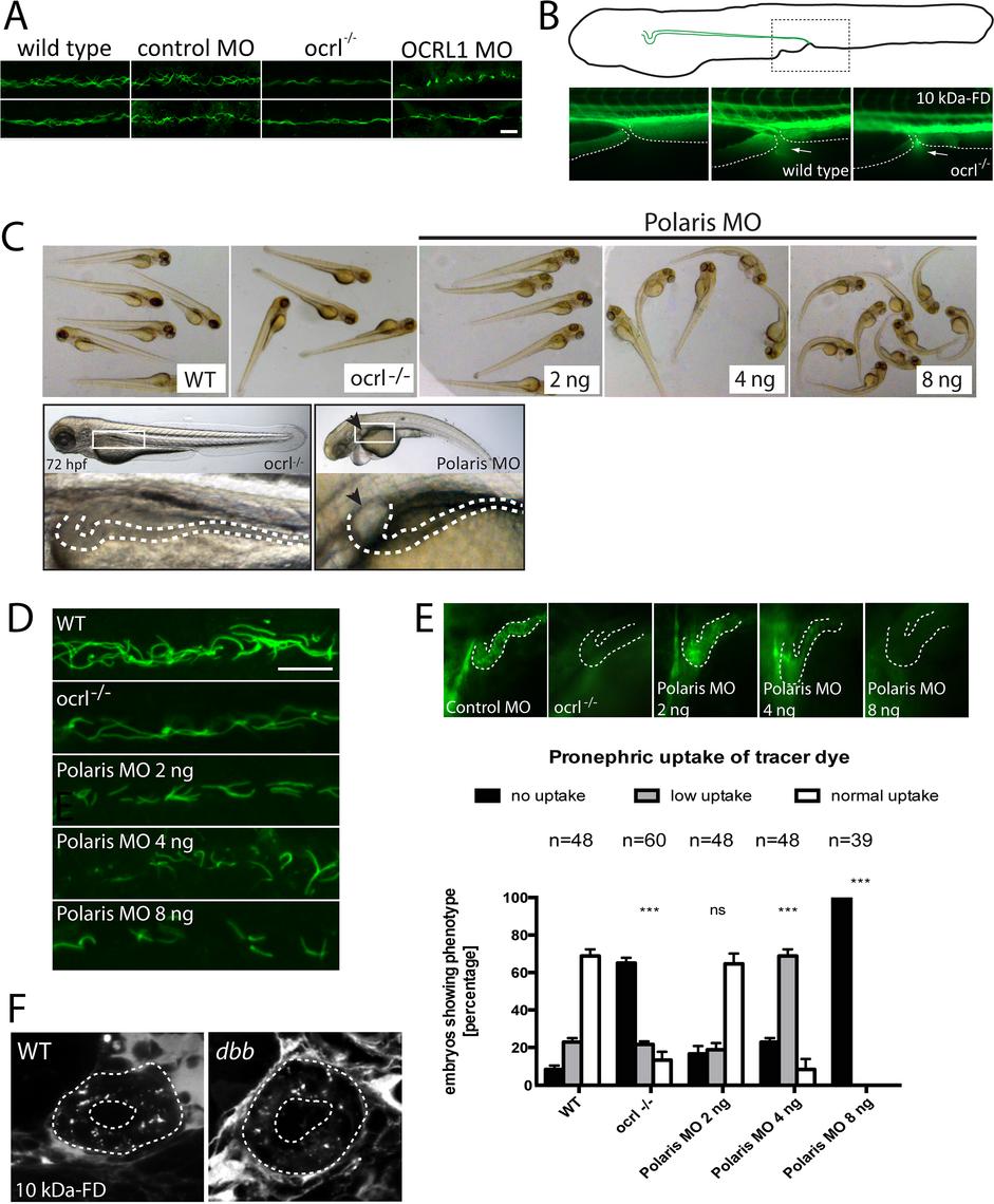 Pronephric cilia in <i>ocrl<sup>-/-</sup></i> zebrafish.