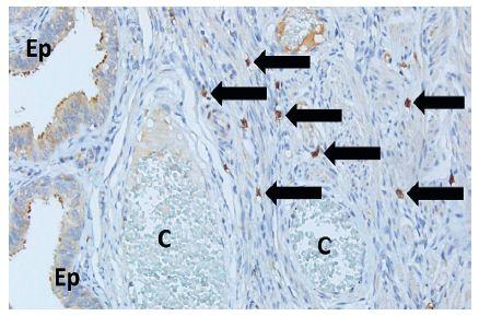 Telocyty vo svalovej vrstve vajíčkovodu (šípky). Okolo nich cievy (C) naplnené krvinkami, na povrchu rias sliznice vidieť výstelkový epitel (Ep) (anti-CD117, vizualizované diaminobenzidínom do hneda, orig. zväčšenie 200x)