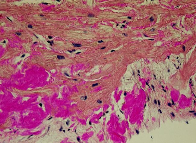 Depozita amyloidu v endomyokardiální biopsii (barvení Saturnovou červení, objektiv 40krát)