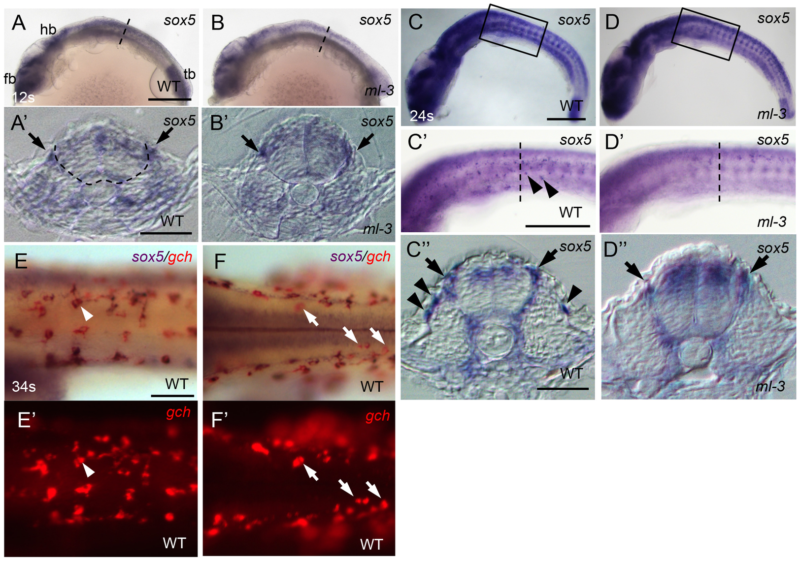 Expression pattern of medaka <i>sox5</i> in WT and <i>ml-3</i> mutant embryos.