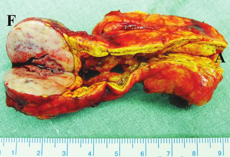 Feochromocytom (F) a adenom (A) v levé nadledvině Fig. 2. Feochromocytoma (F) and adenoma (A) in the left adrenal gland