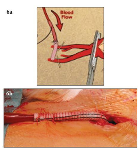 A, B. Neischemická kanylace femorální tepny (A – schéma, B – peroperační foto) Fig. 6 A, B. Non-ischemic canylation of the femoral artery (A – diagram, B – intraoperative view)