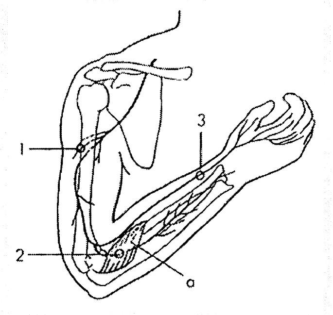N. radialis. Úžiny: 1 – r. cutaneus brachii posterior (průchod fascií paže), 2 – supinátorový tunel (a v hloubi n. interosseus posterior), 3 – r. superficialis na distálním předloktí. Sval: a – m. supinator.