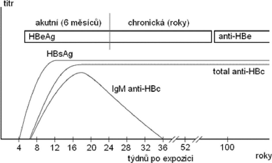 Sérologické vyšetření u chronické virové hepatitidy typu B (podle Chalupa P.: Problematika akutních virových hepatitid)