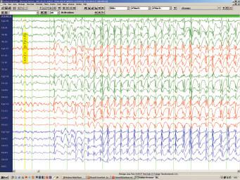 Obr. 7b. Myoklonické absence – iktální EEG (úsek odpovídající semiologii na obr. 1a).