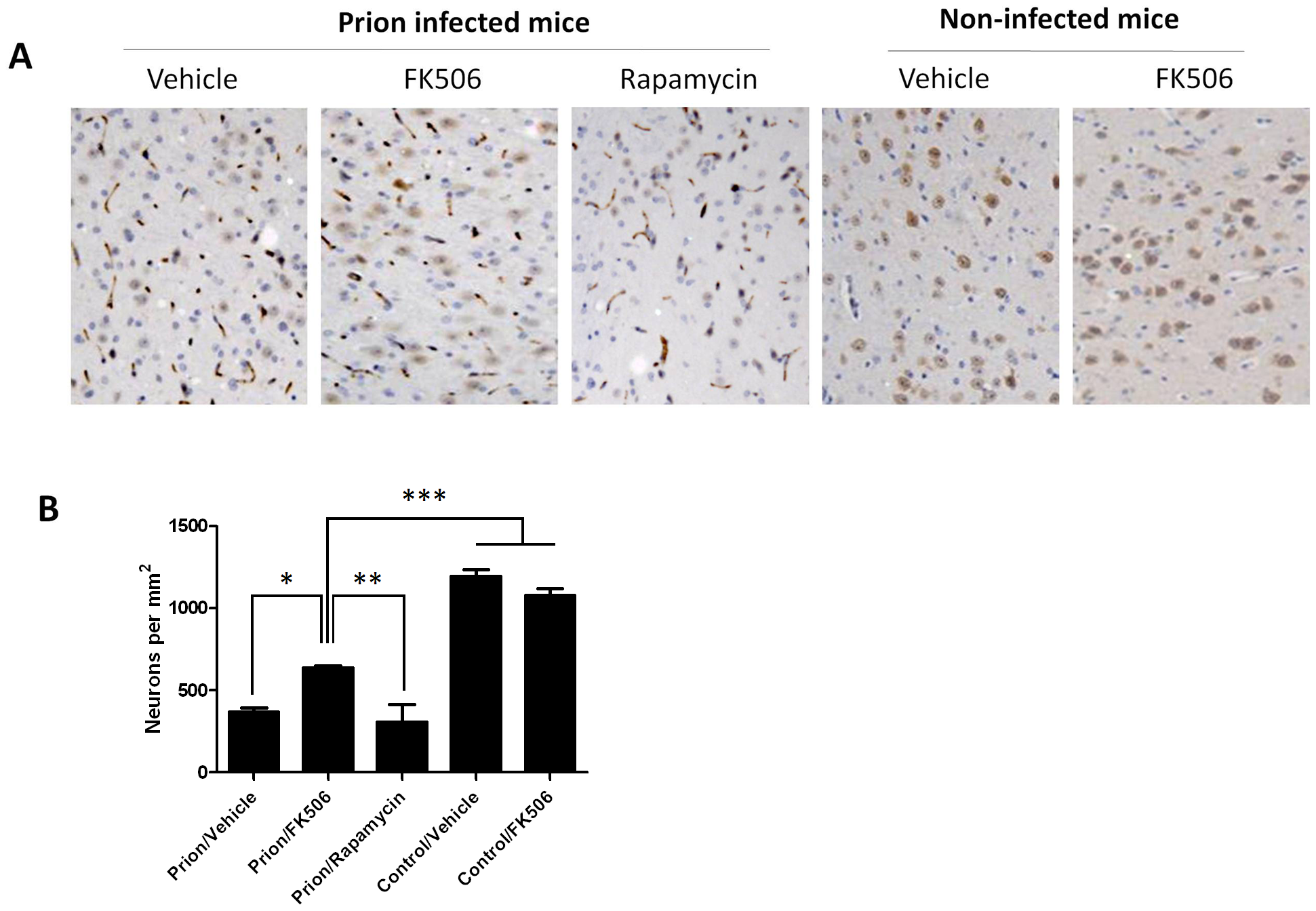 Treatment with FK506 decreases prion-induced neuronal loss.