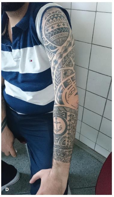 Obr. 2 Pacient č. 2 2a Smíšená injekce spojivky u přední uveitidy na OP 2b Mírná aktivita přední uveitidy na OL 2c Drobné bělavé ohraničené ložisko v periferii sítnice OL podobné jako u sarkoidózy 2d Tetování na levé paži bez známek zarudnutí a zduření kůže