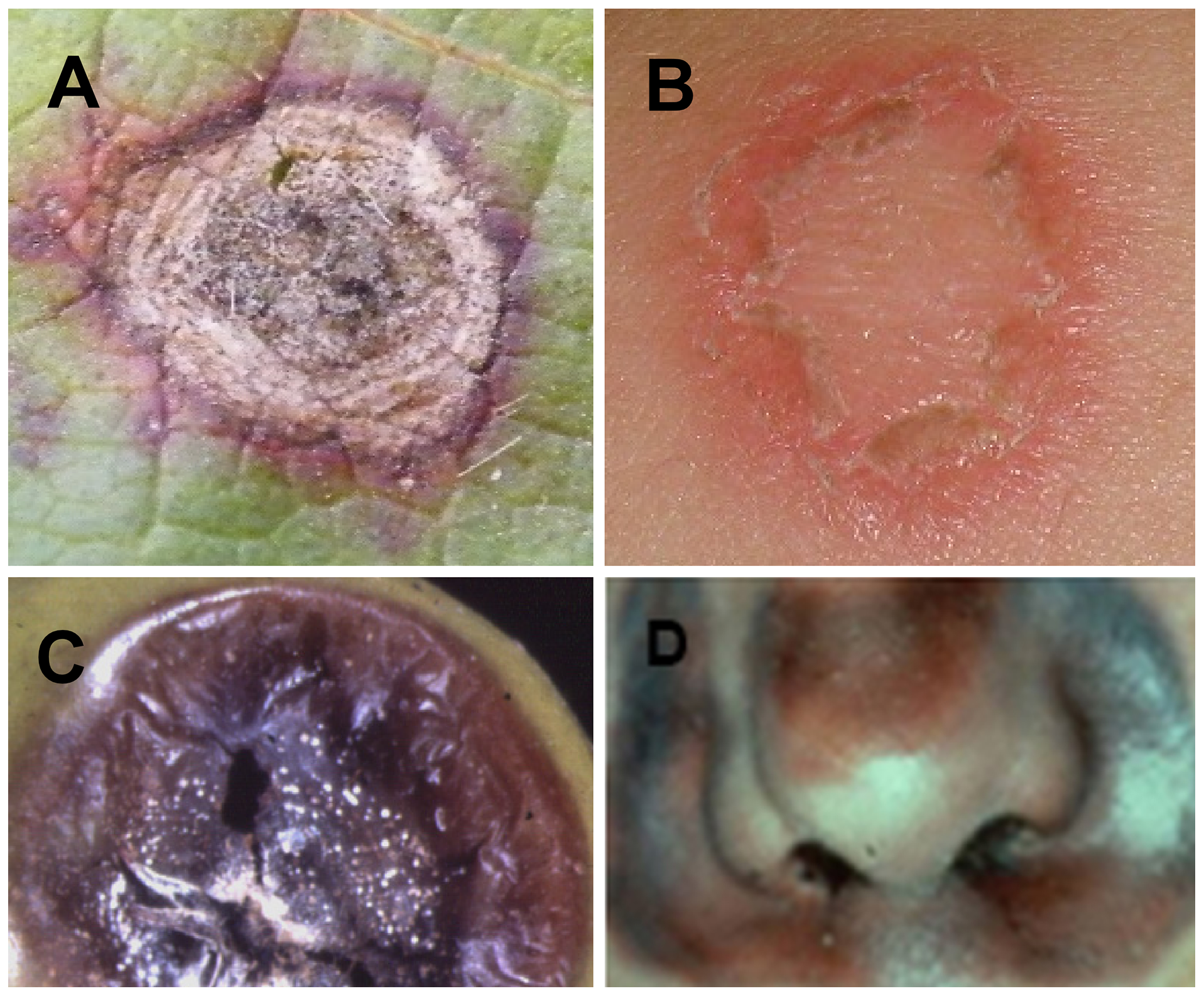 Similar symptoms caused by fungal pathogens on plants and humans.