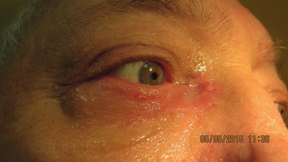 Pacient 2 týždne po excízii a plastike pre bazalióm vnútorného kútika (5/2015)