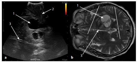 Sonografický obraz glioblastomu thalamu a korespondující MR obraz v T2W vážení.