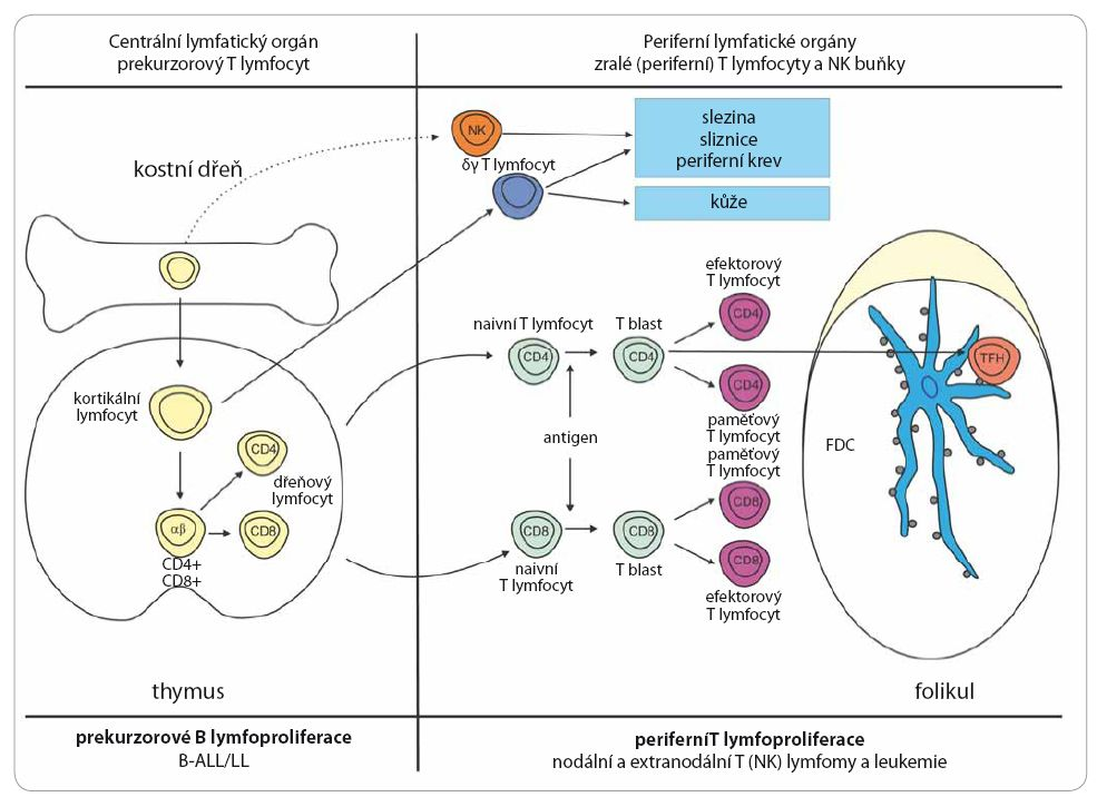 Schéma vývoje B lymfocytu a přehled jednotlivých jednotek T buněčných lymfoproliferativních nádorů.