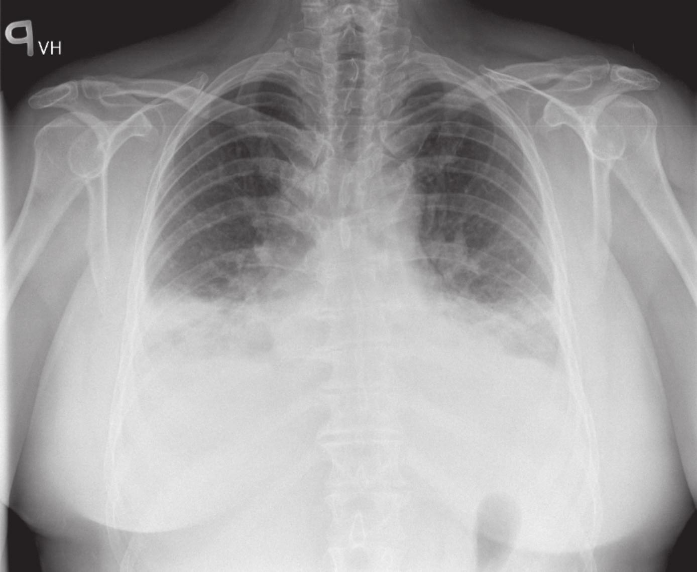 RTG srdce a plic: fluidotoraxy bilaterálně.