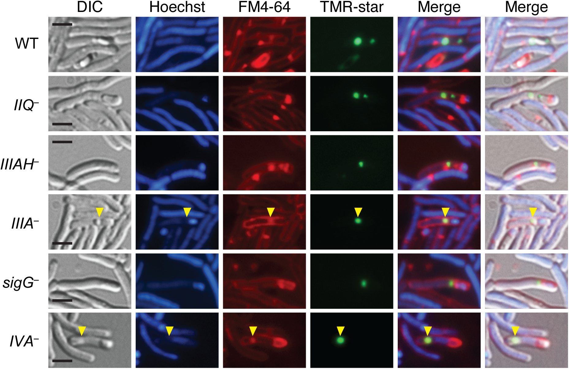 Coat mislocalization in the absence of SpoIIQ and SpoIIIA proteins.