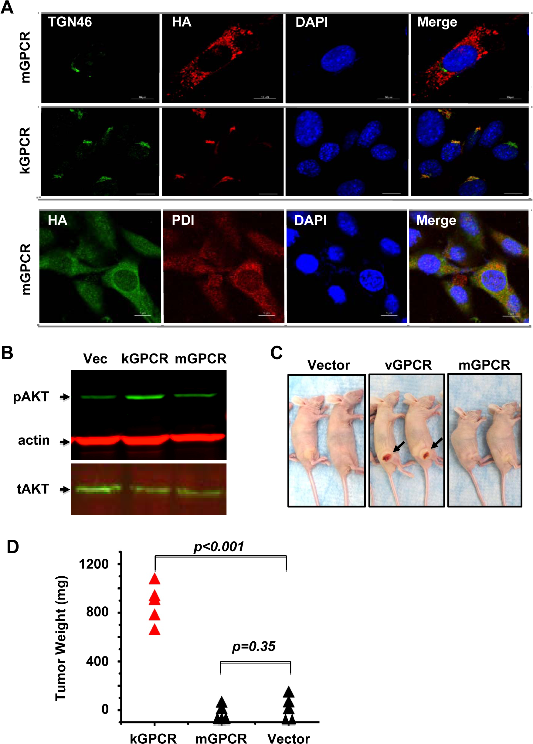 Differential signaling and tumorigenic capacity of kGPCR and mGPCR.