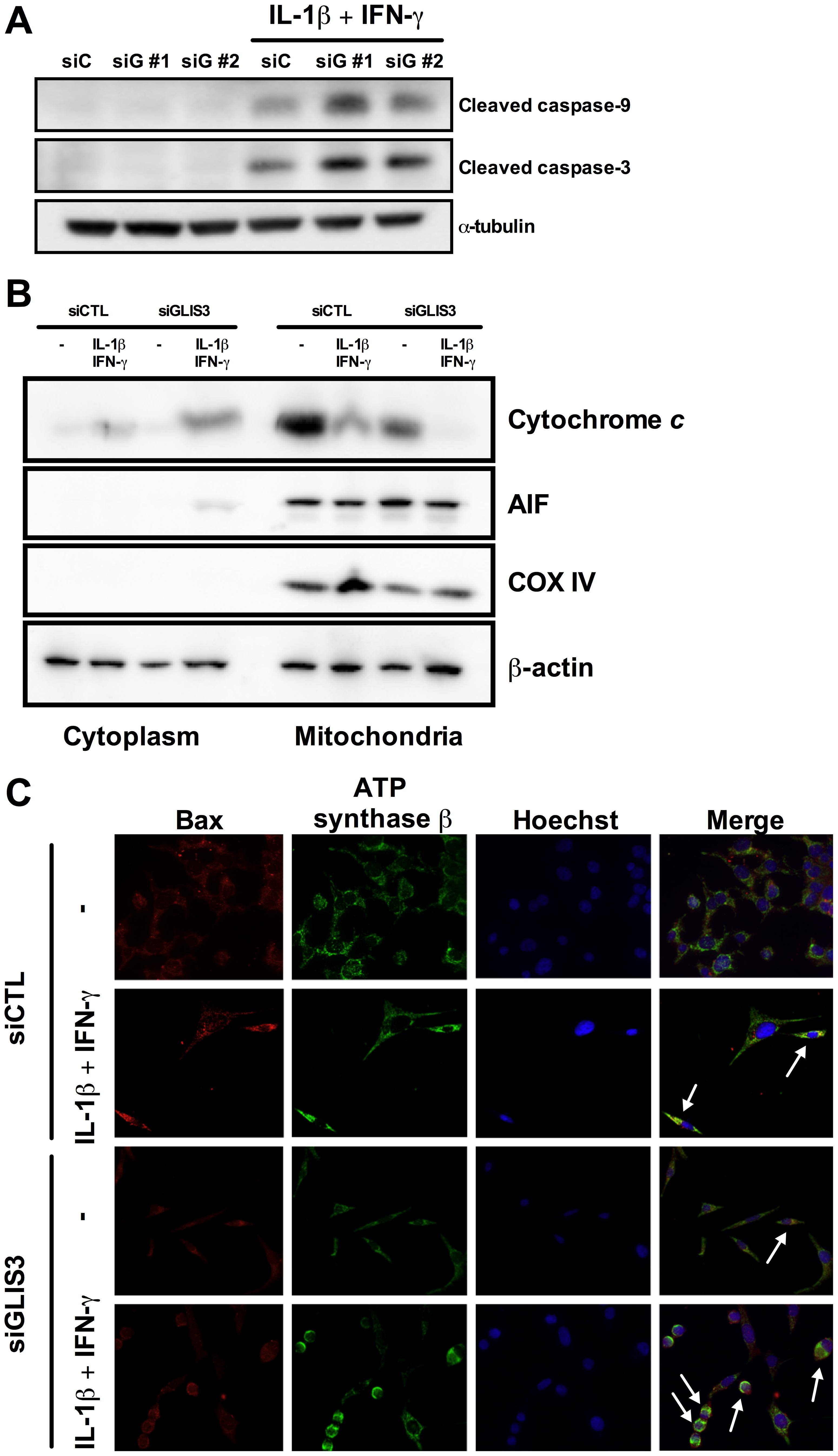 <i>GLIS3</i> KD potentiates cytokine-induced beta cell death via the mitochondrial pathway of apoptosis.