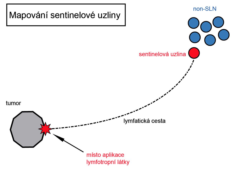 Mapování sentinelové uzliny