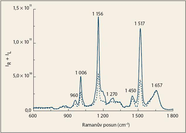 Průměrná Ramanova spektra krevní plazmy pacientů s karcinomem pankreatu (čárkovaná čára) a kontrolních jedinců (plná čára). Fig. 1. The average Raman spectra of blood plasma from patients with pancreatic cancer (dashed line) and control subjects (solid line).