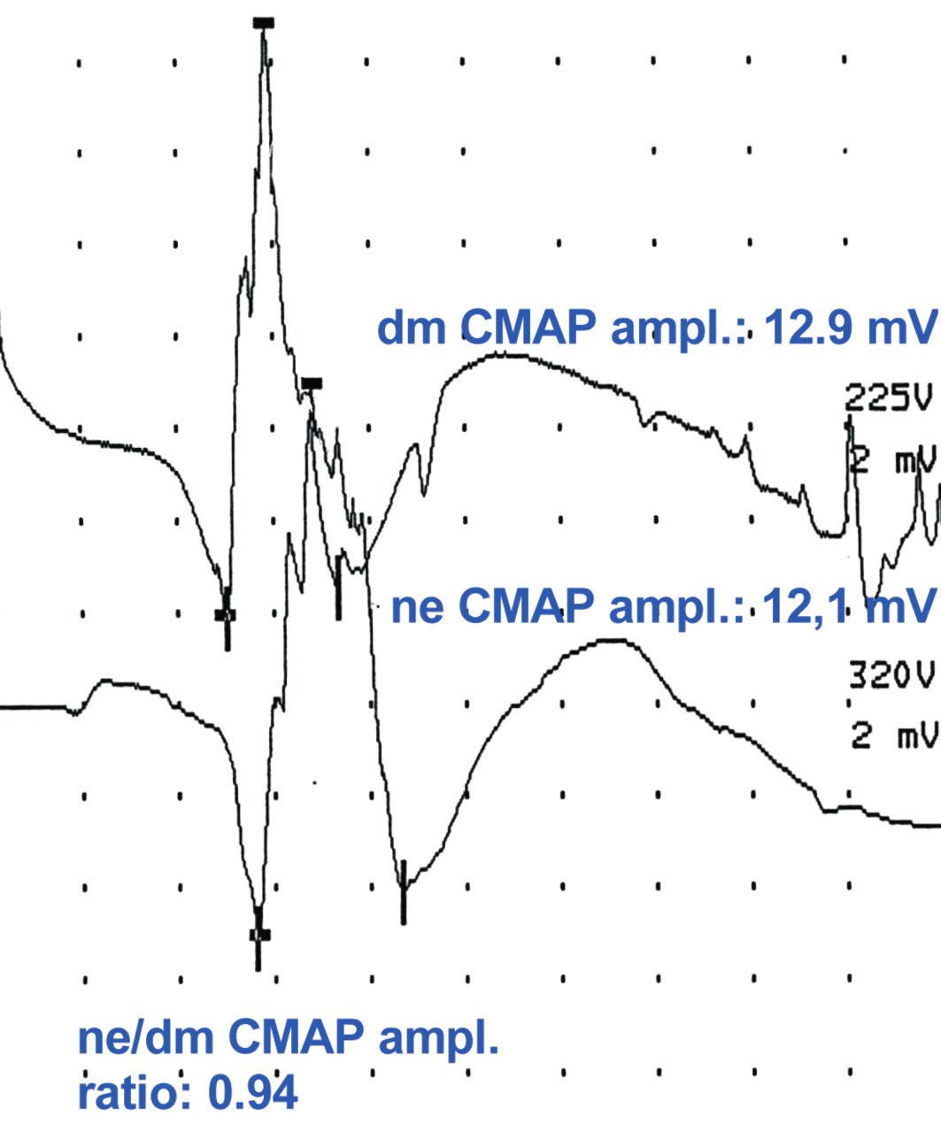 Obr. 2c ukazuje normální amplitudu dmCMAP a neCMAP, poměr ne/dmCMAP kolem 1,0, což odpovídá normálnímu nálezu.