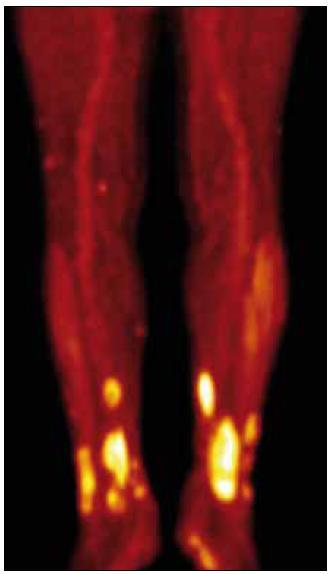 PET CT končetin, je zřetelná velmi vysoká akumulace <sup>18</sup>fluorodeoxyglukózy v oblasti xantogranulomů, svědčící o jejich vysoké metabolické aktivitě.