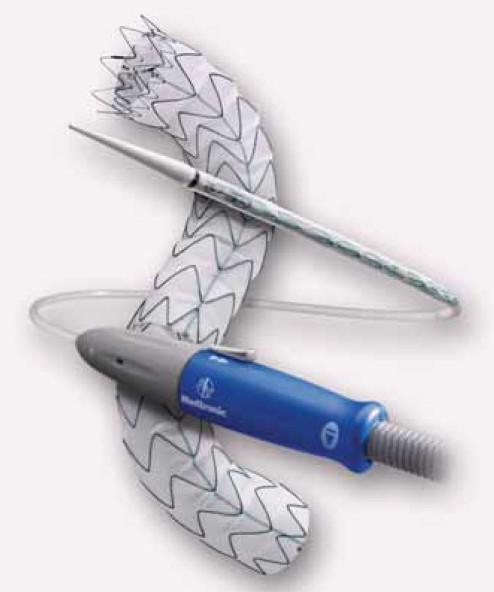 """""""Valiant"""" stentgraft firmy Medtronic. Průmyslově vyráběný stengraft, jenž je tvořen nitinolovou kostrou, na kterou je připevněna cévní protéza."""