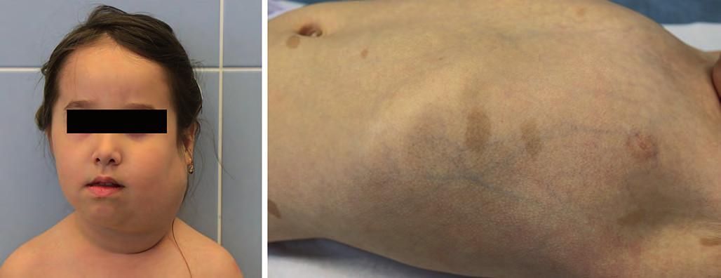 Neurofibromatóza typ I. A. plexiformní neurofibrom krku; B. café-au-lait na kůži.