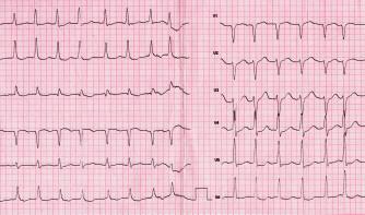 30ročný pacient, 12 rokov liečený pre artériovú hypertenziu, s prvým paroxyzmom fibrilácie predsiení s rýchlou odpoveďou komôr po alkoholovom excese, s klinickým obrazom začínajúcej globálnej srdcovej slabosti. Laboratórny nález: etylalkohol 1,54 ‰, ostatný nález v norme. Na EKG fibrilácia predsiení s frekvenciou 150–160/min, depresie ST segmentu II, III, aVF, V4–6, ako znak obojkomorového preťaženia (klinický materiál III. internej kliniky LF UPJŠ a FGN L. Pasteura Košice)