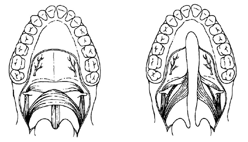 Uložení a průběh m. levator veli palatini a m. tensor veli palatini.  Vlevo je normální obraz, vpravo stav u rozštěpu, kde je levator dislokován longitudinálně a šlacha tensoru obtáčí hamulus směrem vpřed, aby se spojila s aponeurózou levatoru. Oddělená svalovina každou polovinu patra táhne jiným směrem, tedy laterokraniálně, čímž dochází k dalšímu rozšíření rozštěpu. Podle Mc Carthy: Plastic and reconstructive Surgery, vol. 4.